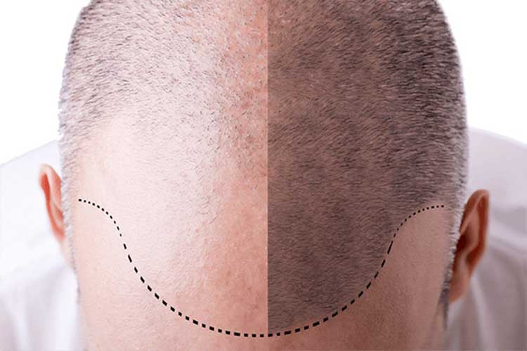 FUE (Follicular Unit Extraction) technique is an affordable, proven, minimally invasive outpatient procedure by which follicular unit grafts, each consisting of a number of hair follicles, are individually removed from the naturally stronger areas on the back of the scalp and transplanted into the bald and thinning areas.
